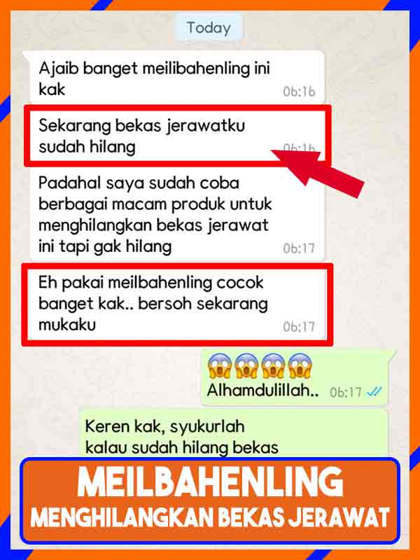 Jual Meilibahenling Cream Penghilang Bekas Jerawat di Aceh Selatan
